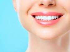 7 טיפים ביתיים ומועילים להלבנת שיניים